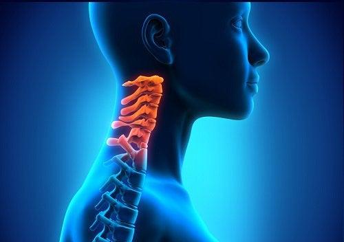 cervikal spondylose