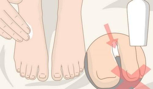 8 ting du kan gøre hver dag for at få sunde fødder