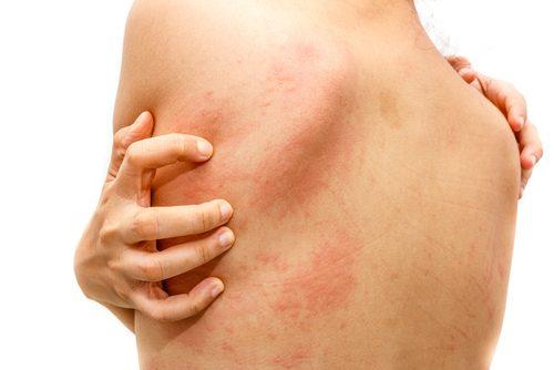 Behandl din irriterende kløe med de her hjemmemidler mod nældefeber.