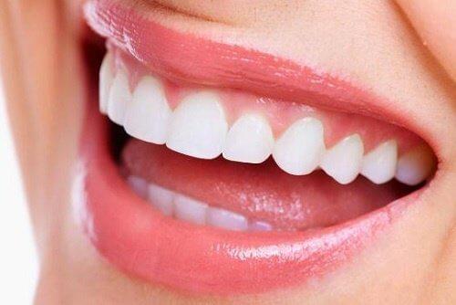 Et hvidt smil