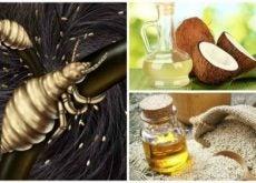 Der findes masser af naturlige lusekure, der kan hjælpe dig med at slippe af med lus en gang for alle.