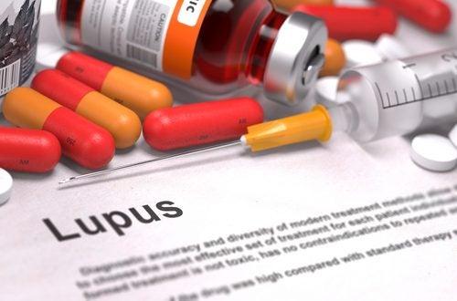 Lupus sygdom er en af de farligste sygdomme der findes.
