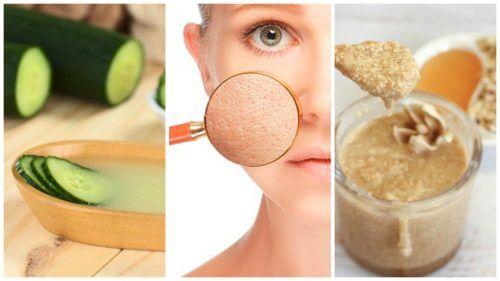 Væk med store porer – fem naturmidler, der kan hjælpe