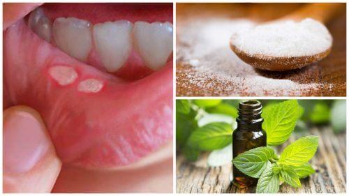 Syv hjemmebehandlinger mod sår i munden