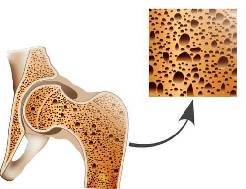 slidgigt og osteoporose er begge trælse sygdomme.