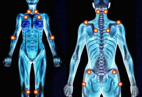 Roengten af krop med smertepunkter