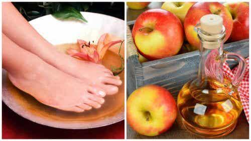 6 fordele ved at dyppe dine fødder i eddike
