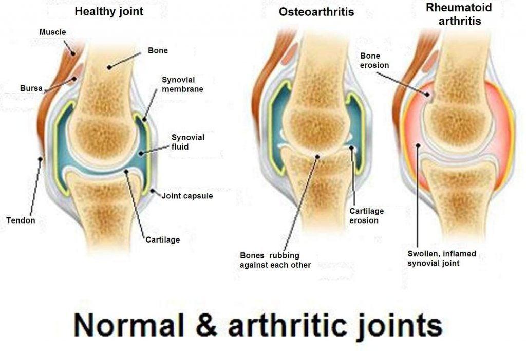 Du bør kende forskellen mellem gigt, slidgigt og osteoporose