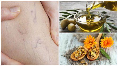 Sådan kan du slippe af med åreknuder med olivenolie og morgenfrue
