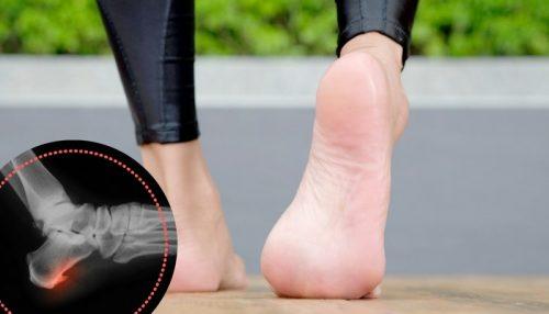 5 øvelser til at behandle hælsporer