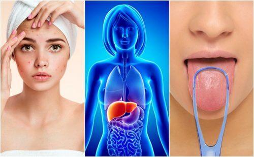 7 adverselstegn på at din lever er overvældet med toksiner