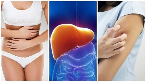 8 symptomer på toksiner i leveren