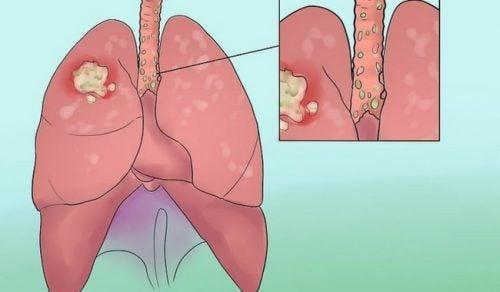 8 chokerende tegn på lungekræft du ikke bør ignorere