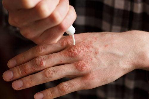 medicin mod psoriasis