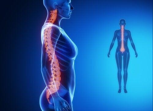 Billede af kvinde med rygrad