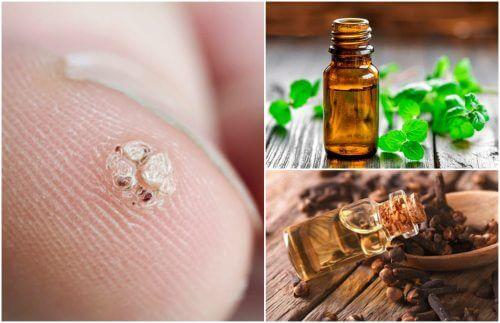 7 æteriske olier, der hjælper dig med at slippe for vorter