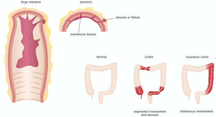 Behandling af crohns kan være svært.