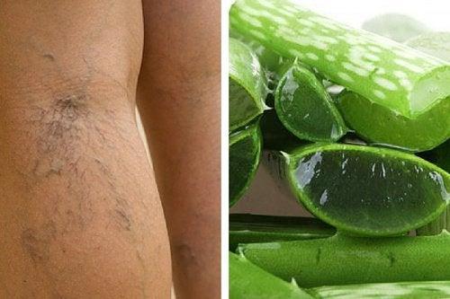 Lime og ben med aareknuder.