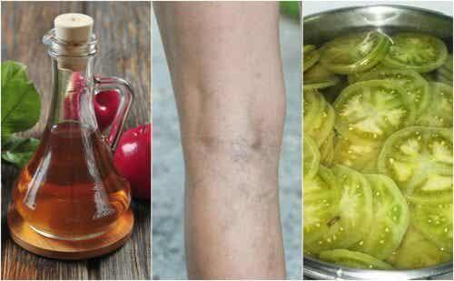 Bekæmp åreknuder med eddike og grønne tomater