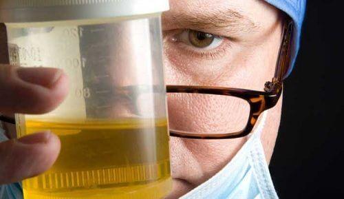 8 grunde til din urin lugter og hvad du kan gøre det ved