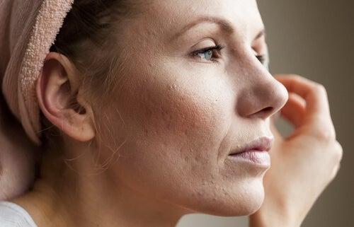 Kvinde med hud