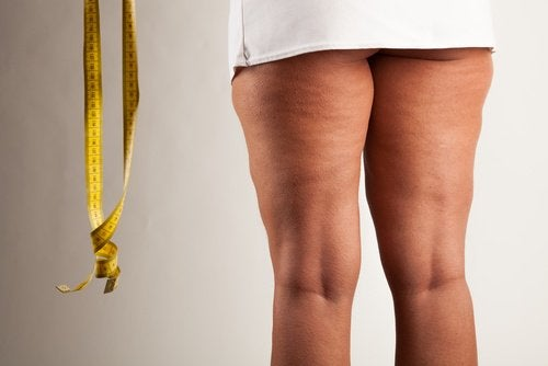 Kvindes ben