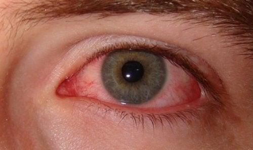 Røde øjne som tegn på angst