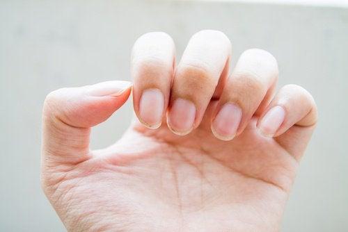 Svage negle som tegn på tarmproblemer