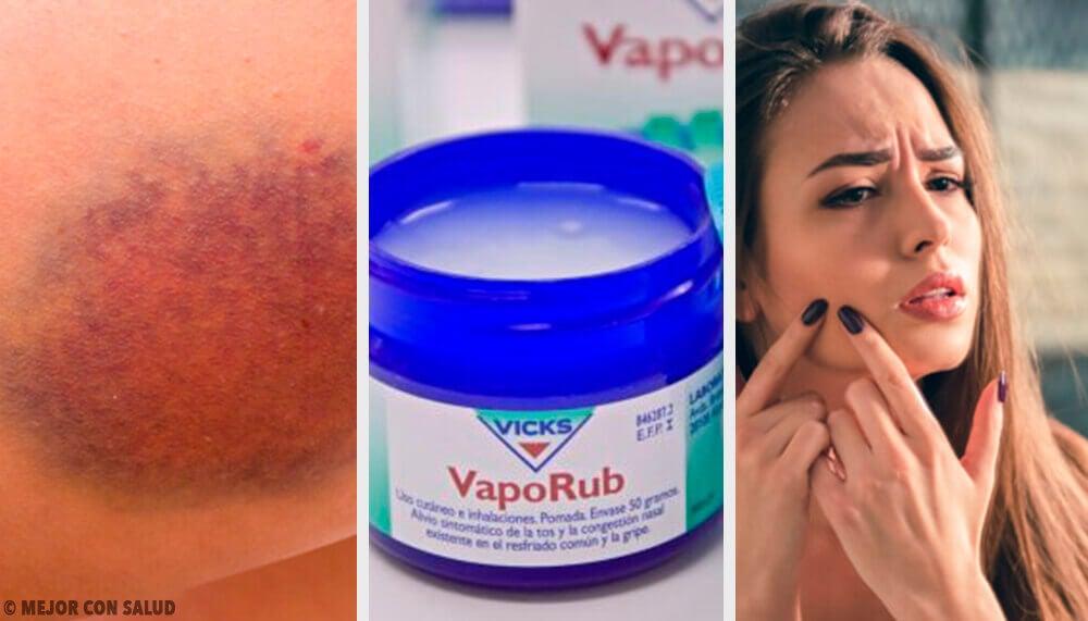 11 overraskende ting du kan bruge Vicks VapoRub til