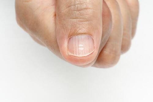 Hvad dine negles lunula fortæller om dit helbred