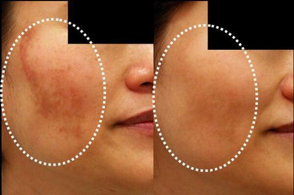 Reducer hud misfarvninger med disse 5 hjemmelavede masker