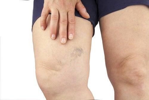 Væskeophobning i benene