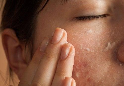 Aspirin mod acne