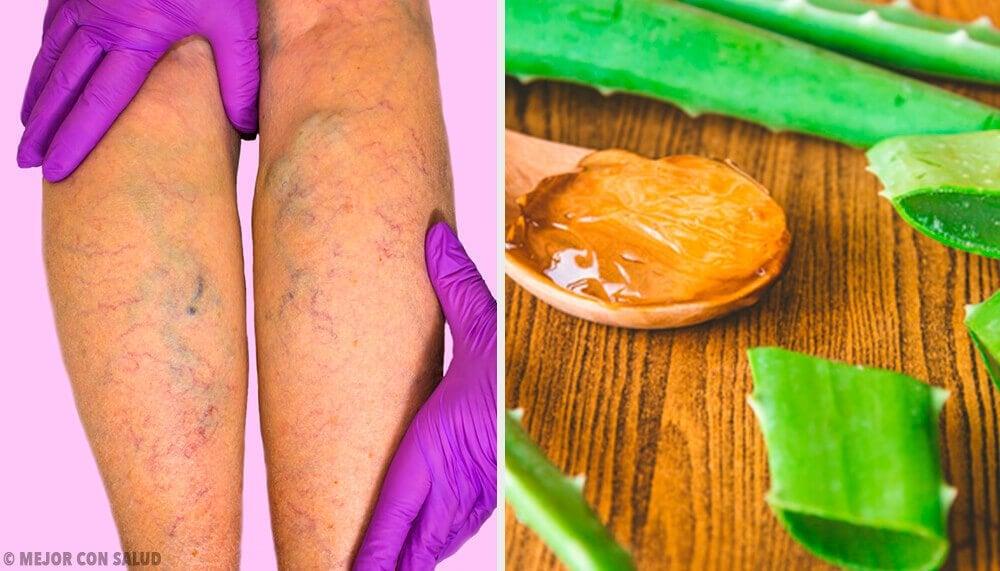 Du kan helbrede åreknuder med dette aloe vera middel