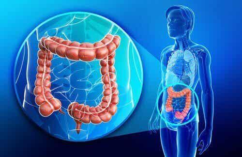 Hvad er Crohns sygdom