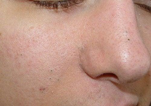 3 hjemmelavede peelinger der fjerner hudorme