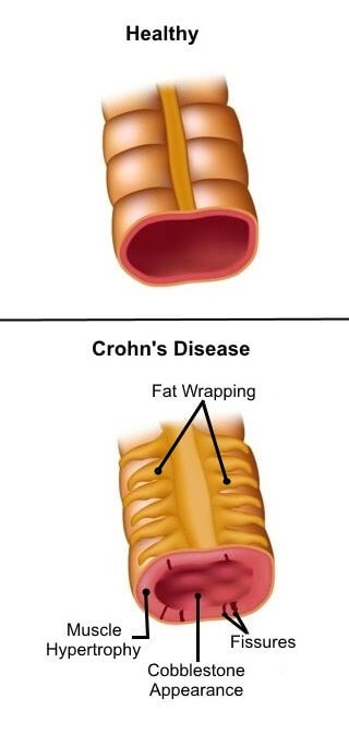 Chrons sygdom