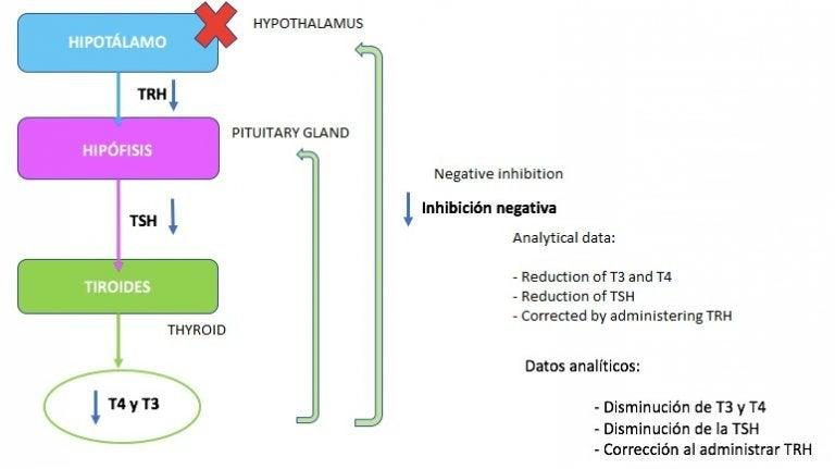 Skema - hvad er Hypothyroidisme