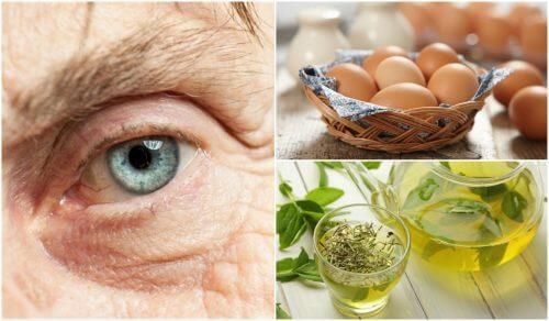 Forebyg øjenforkalkning med disse 7 fødevarer