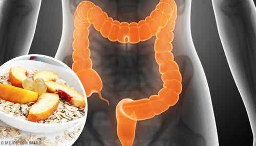 Det skal du spise for at behandle irritabel tyktarm