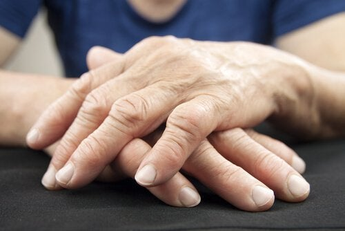 Person med inflammation i haenderne - hjertesygdomme