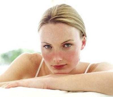 Hvad er systemisk lupus erythematosus?
