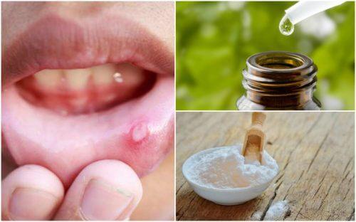 6 naturlige midler mod blister i munden