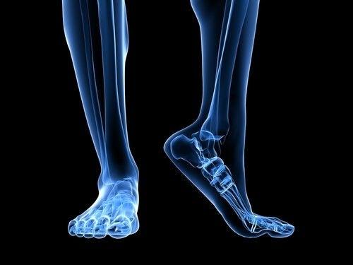 Knogle i fod viser plantar fasciitis