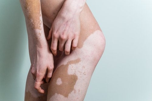 Hvad er vitiligo? Alt du skal vide