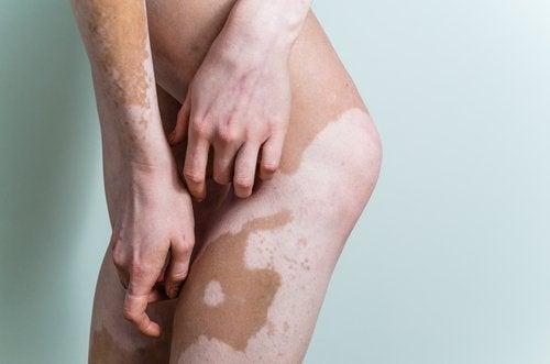 vitiligo behandling vitaminer