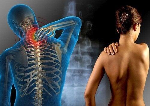 Det skal du vide om fibromyalgi