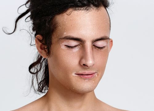 Person med hudsygdommen vitiligo
