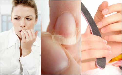 8 grunde til at dine negle er skrøbelige