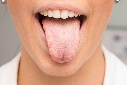 Hvad forårsager en hvid tunge?